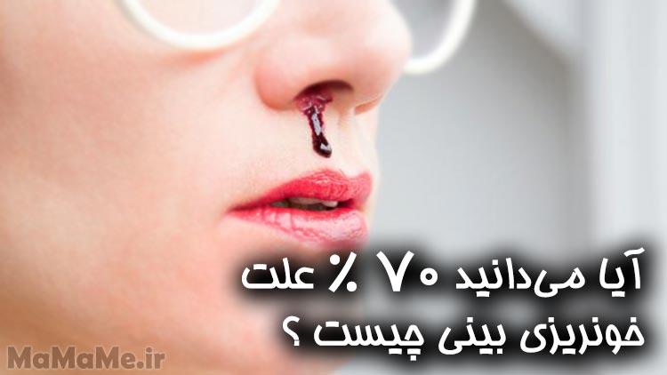 علت خونریزی بینی در فصل گرما چیست