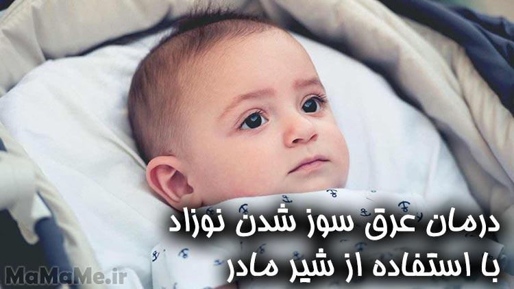 درمان-عرق-سوز-شدن-نوزاد-با-استفاده-از-شیر-مادر