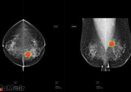 آیا-اشعه-ماموگرافی-سرطان-زا-است-؟-ماموگرافی-چیست