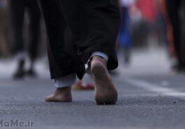 درمان-تاول-پا-در-پیاده-روی-اربعین